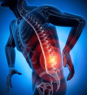 bolący kręgosłup skutecznie można wyleczyć kremem motion energy